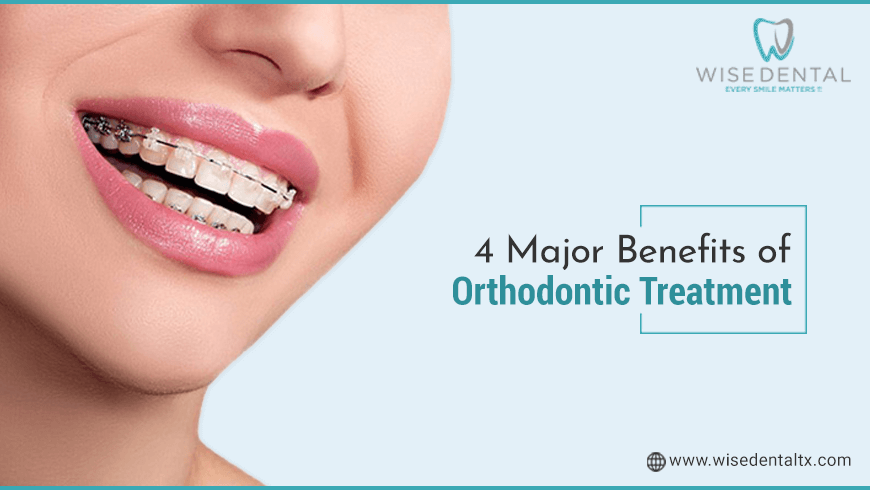 4 Major Benefits of Orthodontic Treatment