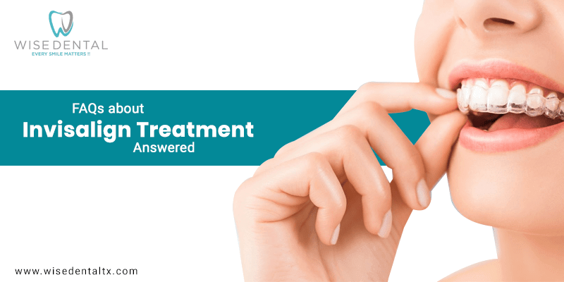 FAQs about Invisalign Treatment Answered