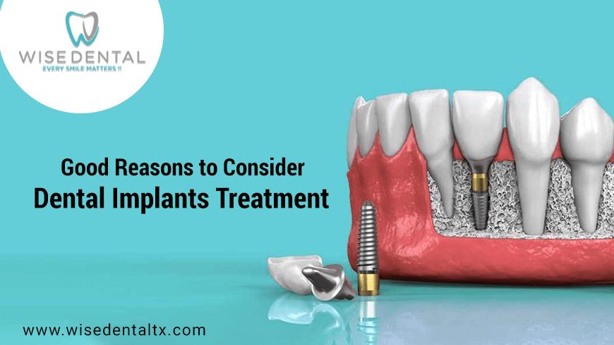 Good Reasons to Consider Dental Implants Treatment