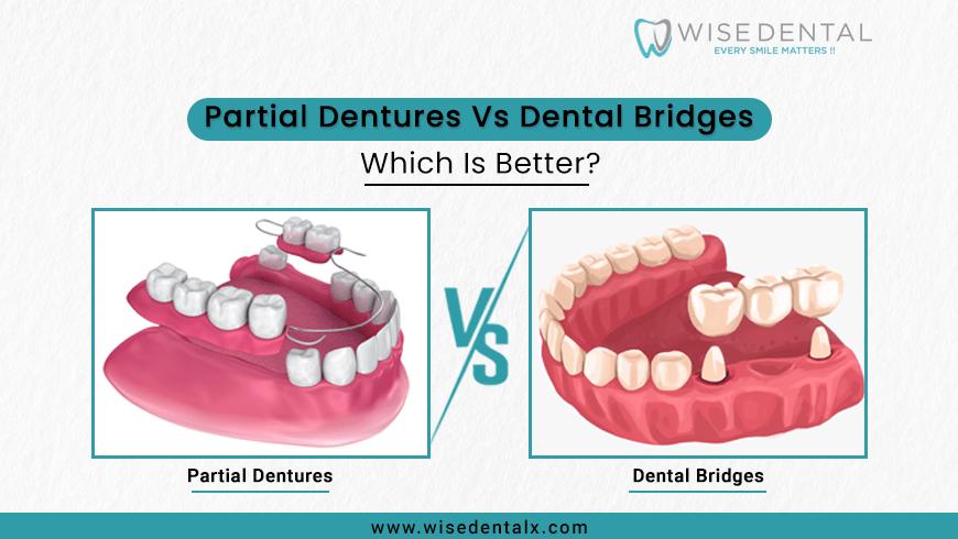 Partial Dentures Vs Dental Bridges – Which Is Better?