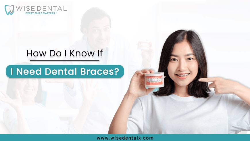 How Do I Know If I Need Dental Braces